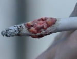 Angleterre - Campagne anti-tabac